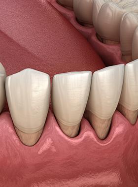 き 歯科 の まつ